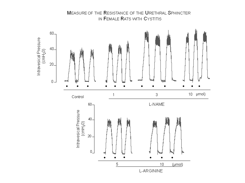 Graphic representation of the intravesical pressure that expresses urethral sphincter resistance values of a female rat after CYP admi- nistration, following the injection of L-NAME and L-ARG via i.t, with the addition of cumulative doses which increase and decrease the urethral sphincter resistance, respectively. Three recordings were performed during the experimental evaluation, 25-30 min after the administration of each drug dose. The top of the recording corres- ponds to the maximum intravesical pressure of the leak point of the fluid via urethra. Represents the beginning of fluid infusion into the bladder and the correspondent increase of the intravesical pressure.